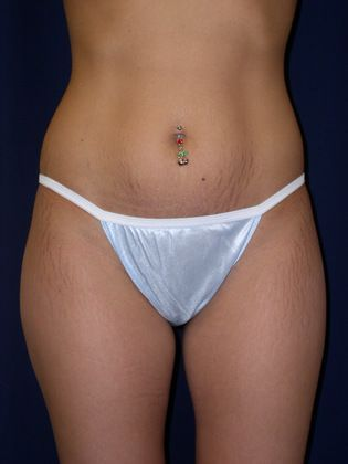 Smartlipo before photo