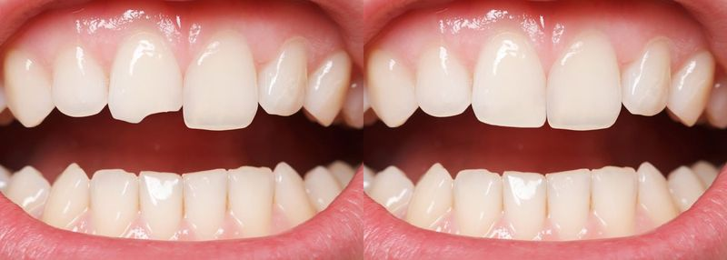 A chipped tooth before and after treatment