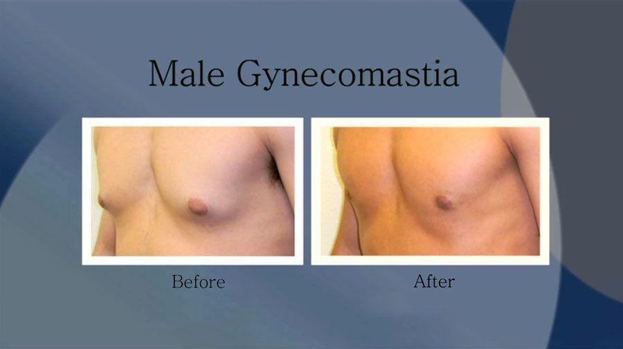 Liposuction For Men Dallas Frisco Plano