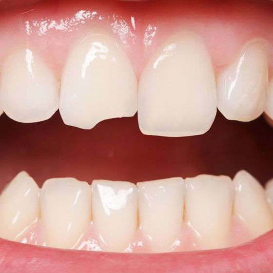 Close-up of a chipped front tooth