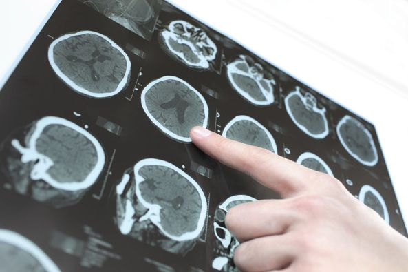 Finger pointing at a brain x-ray