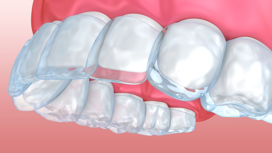 Illustration of clear aligners over top row of teeth