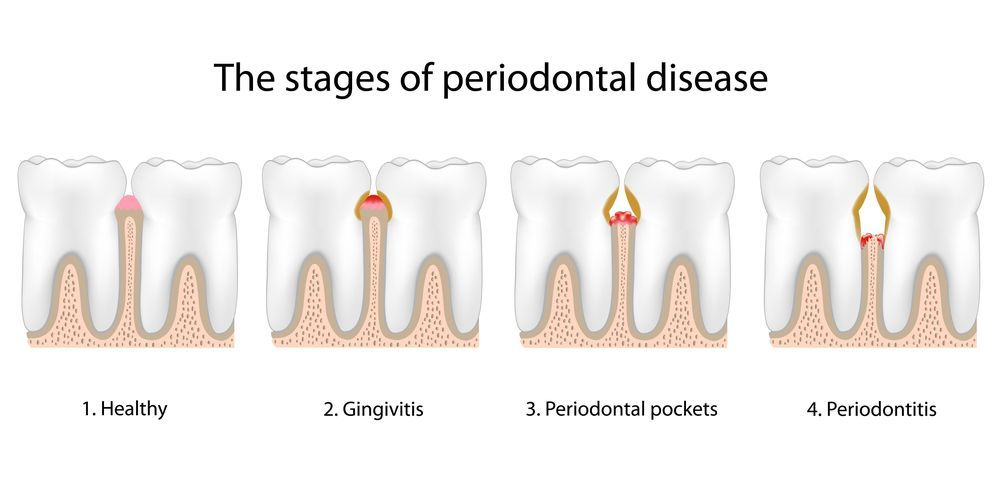 Diagram showing stages of periodontal disease