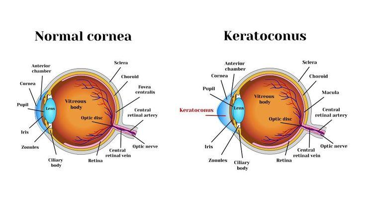 Illustration of corneal cross-linking.