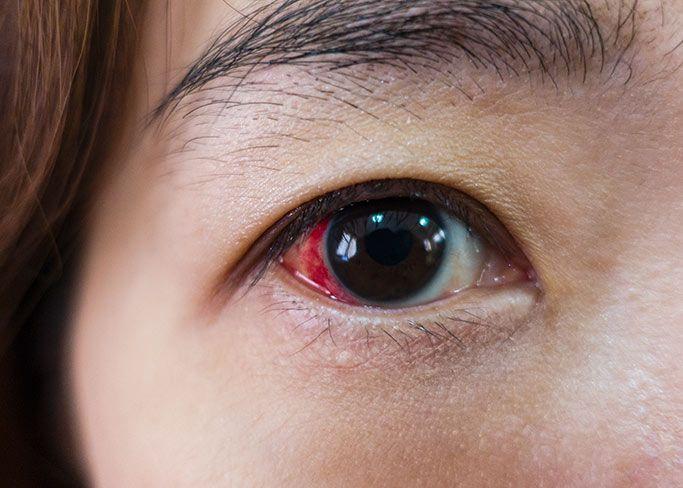 Woman's eye suffering from retinal detachment