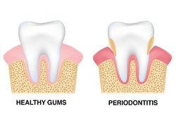 Diagram comparing healthy gums and gums affected by periodontitis