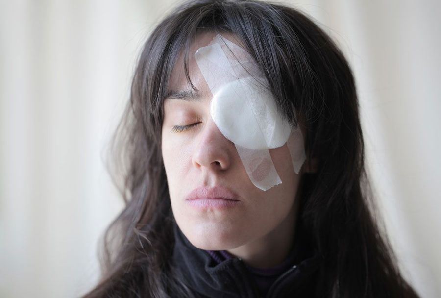 image of woman with eye injury