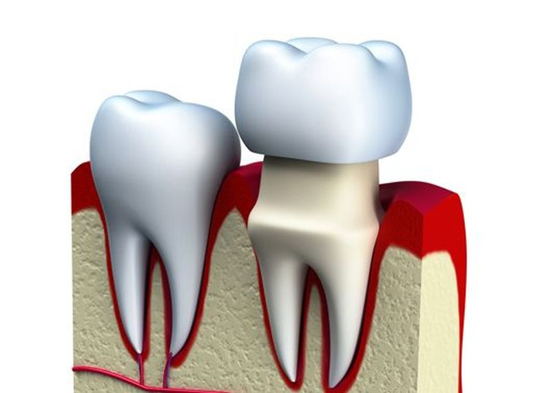 Graphic of a dental crown covering a tooth
