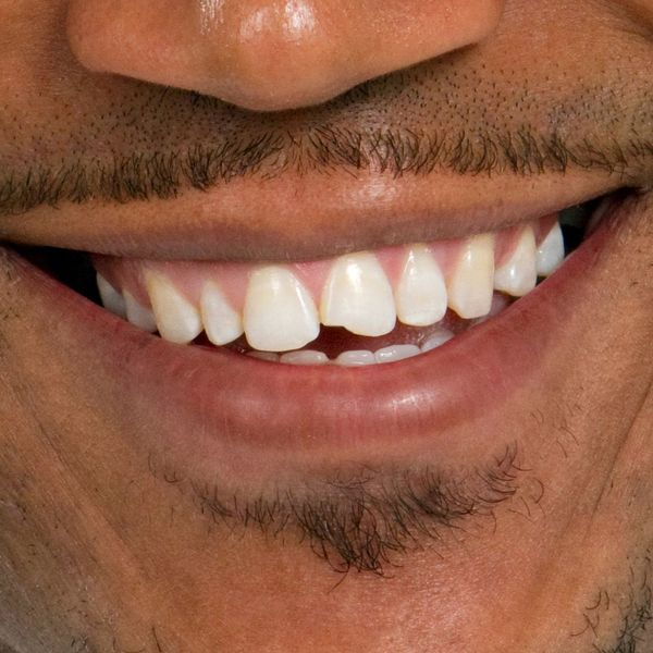 Close up of smiling man's chipping tooth