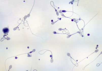 Sperm under a microscope