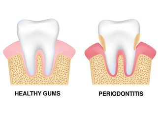 Image of healthy gums versus gums with periodontitis