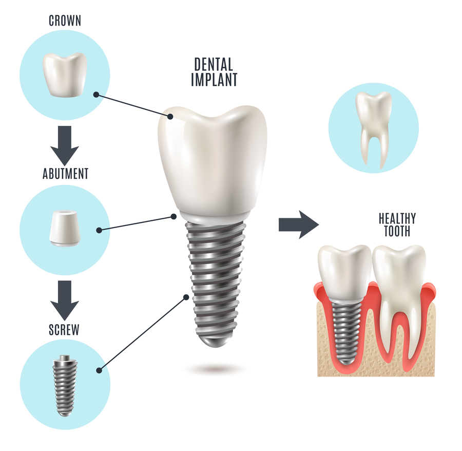 Illustration of components of an implant-supported crown
