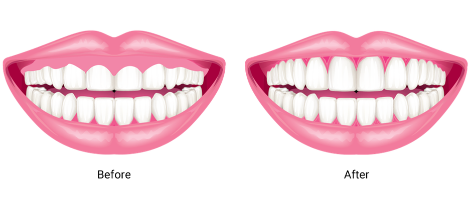 A before and after illustration of gum contouring