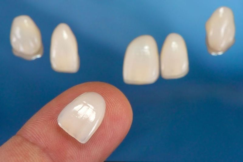 Veneers in background and veneer on fingertip