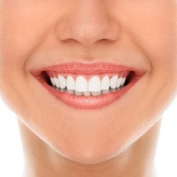 Close-up of smiling mouth after cosmetic dentistry procedure