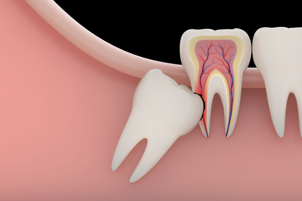 Illustration of a wisdom tooth growing into adjacent tooth