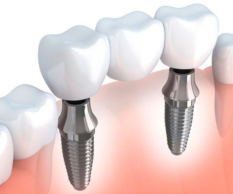 An illustration of a dental bridge