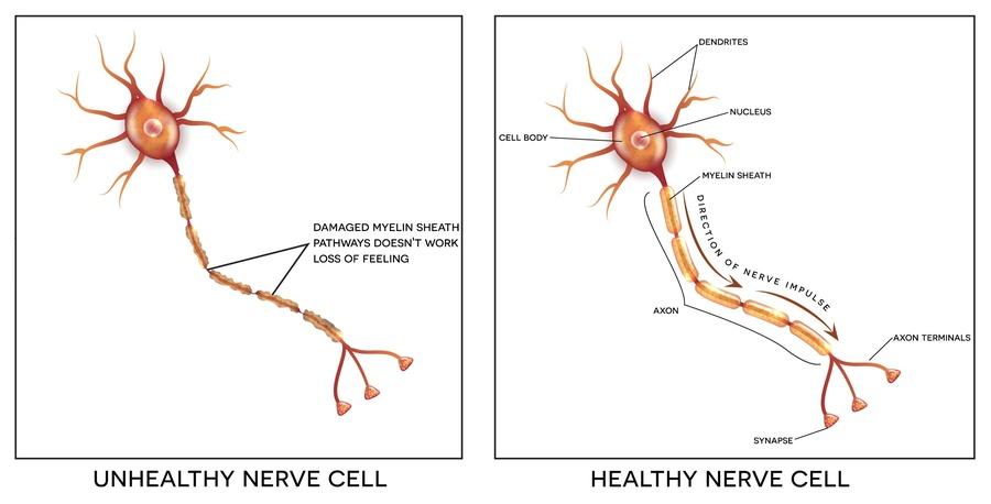 Peripheral Neuropathy Treatment Fort Worth Tx Texas