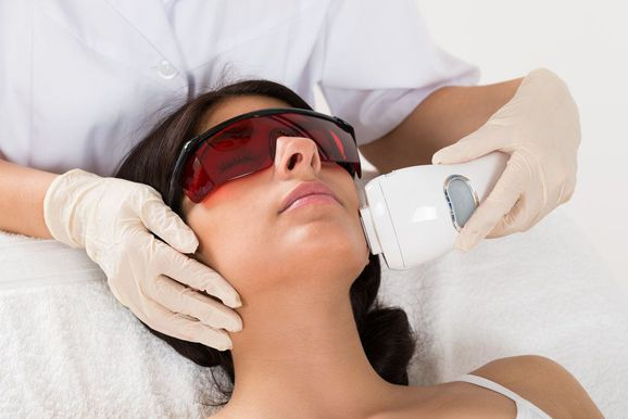 Photo of woman receiving photofacial