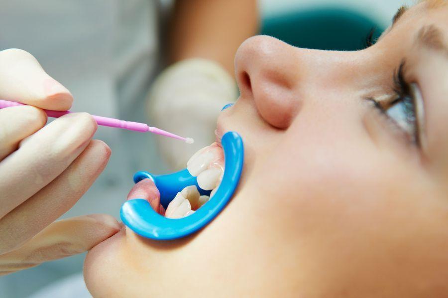 Dentist applying a dental sealant to child's teeth