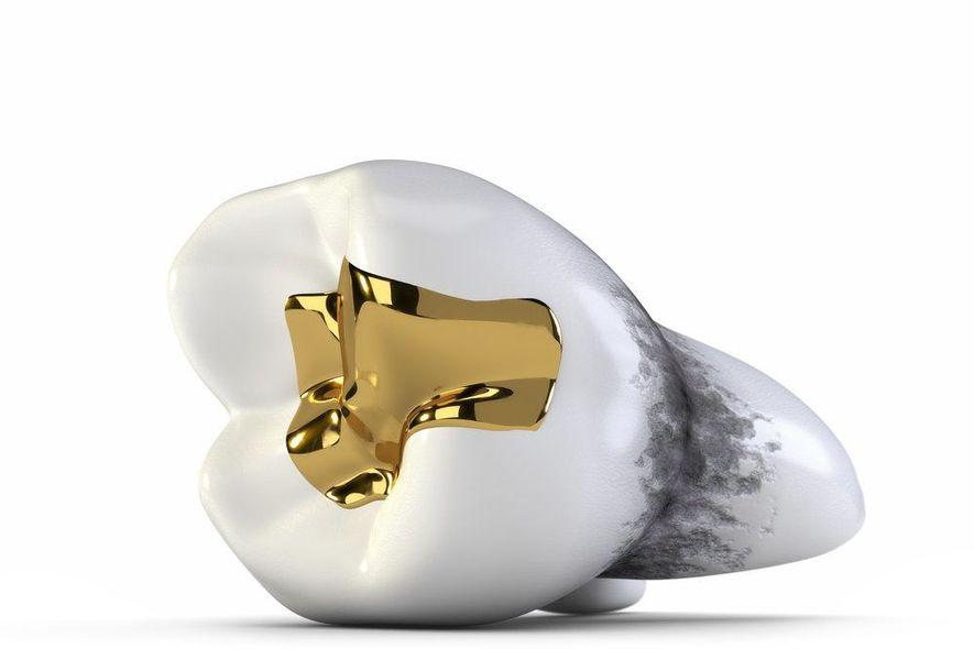 Cast gold filling
