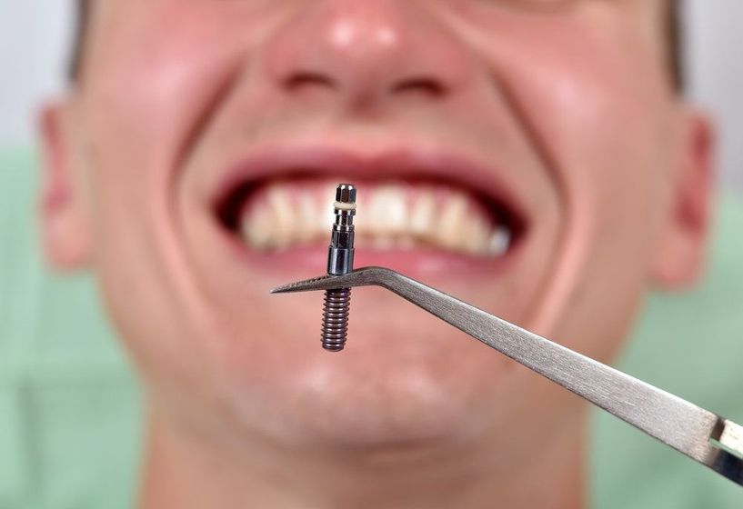 A single dental implant held up in front of a smiling man