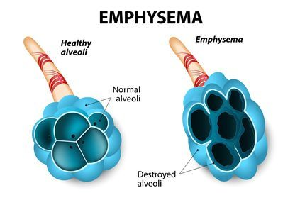 Illustration highlighting the results of emphysema