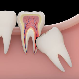 Illustration of impacted wisdom tooth