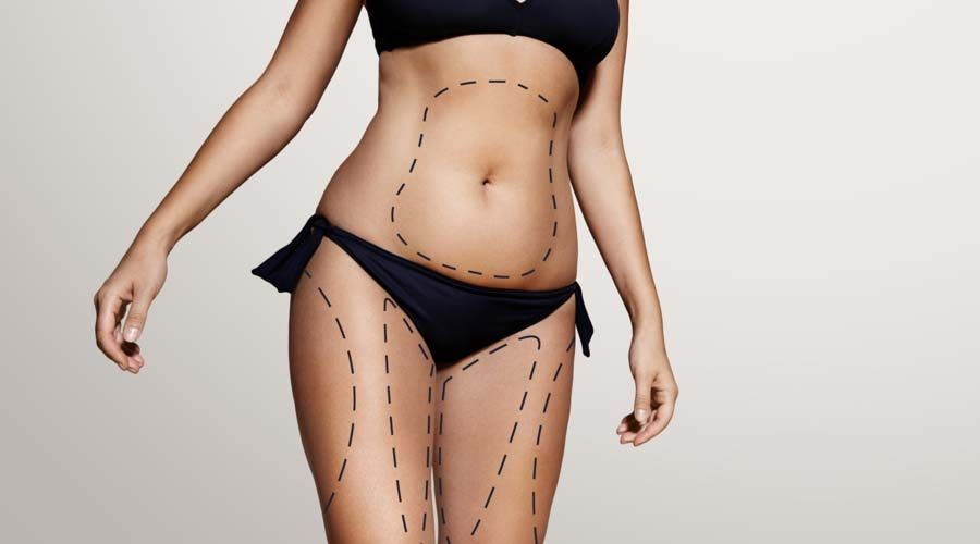 Photo of a woman's body with treatment areas outlined