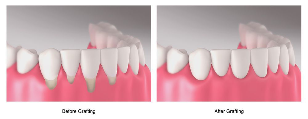 Illustration of before and after gum grafting