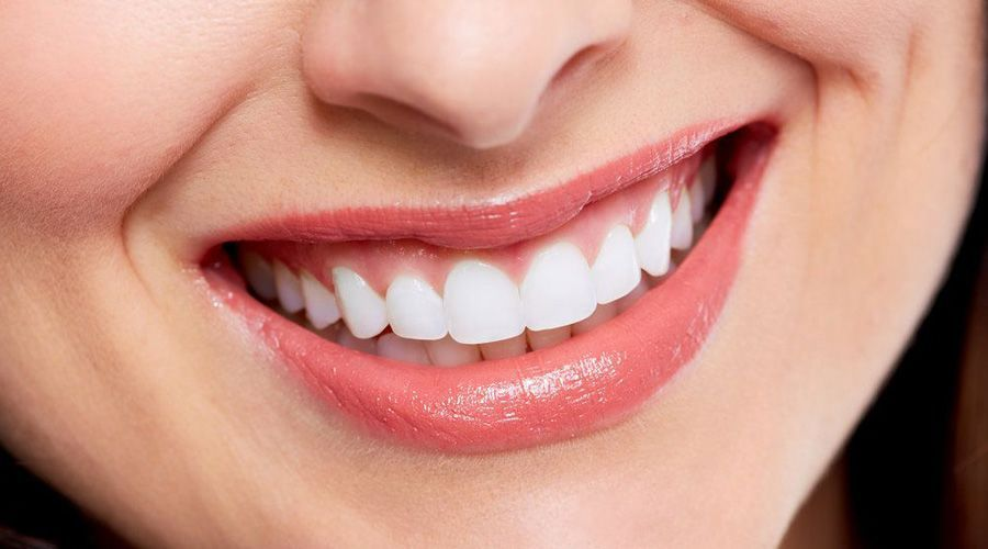 Photo of a woman's smile