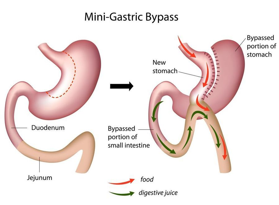 mini gastric bypass, bariatric surgery