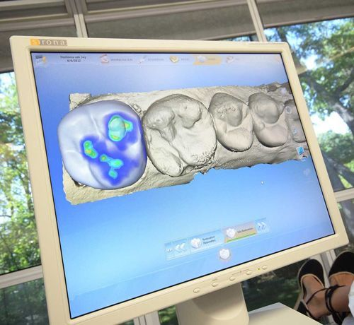 A flat-screen monitor displaying dental image