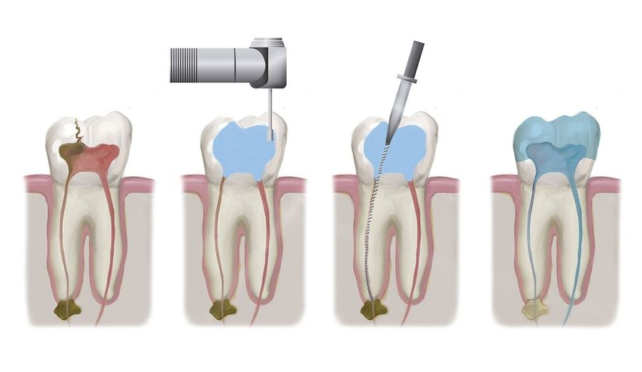 Series of illustrations demonstrating the stages of a root canal procedure.