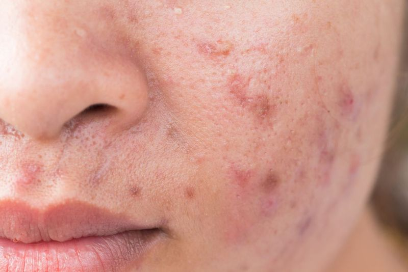 A cheek affected by acne.