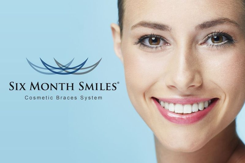 image of six month smiles and logo