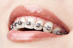 Woman with metal braces.