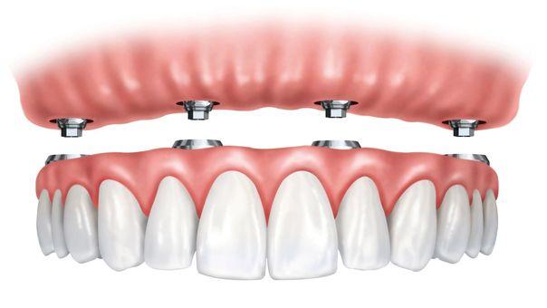 Image of fixed hybrid dental prosthesis