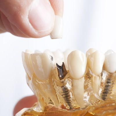 Photo of dental implant posts