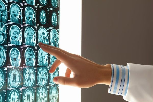 Photo of a hand pointing to a brain scan