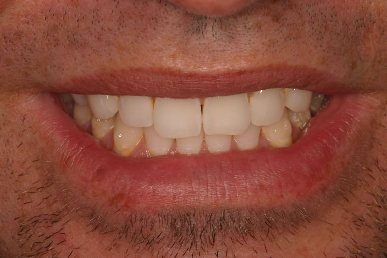 Patient before veneers