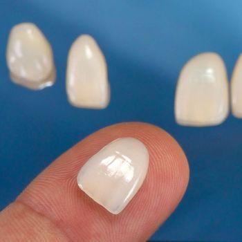 Veneer on fingertip
