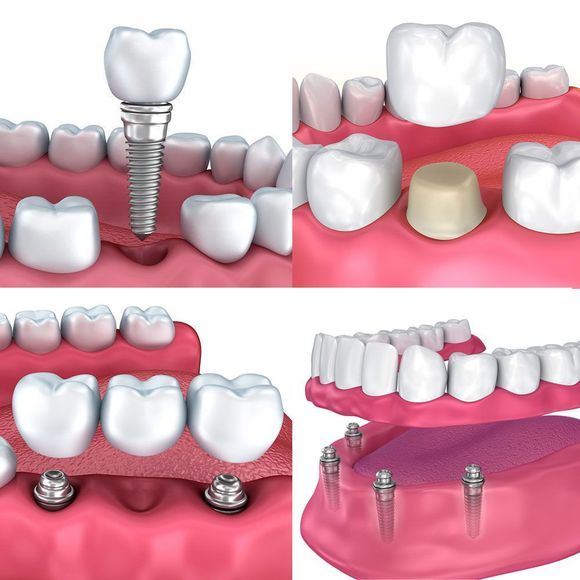 Various types of dental implants