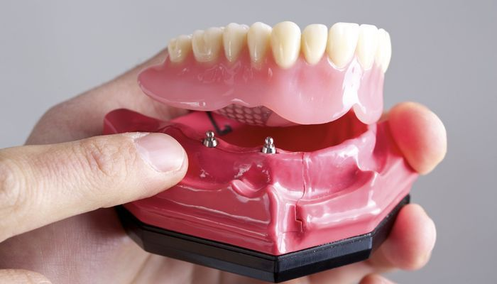 Implant-retained overdenture