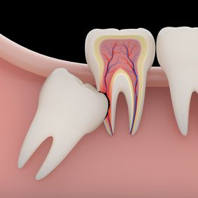 Illustration of wisdom tooth crowding adjacent tooth