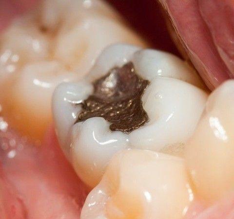 Amalgam filling in molar