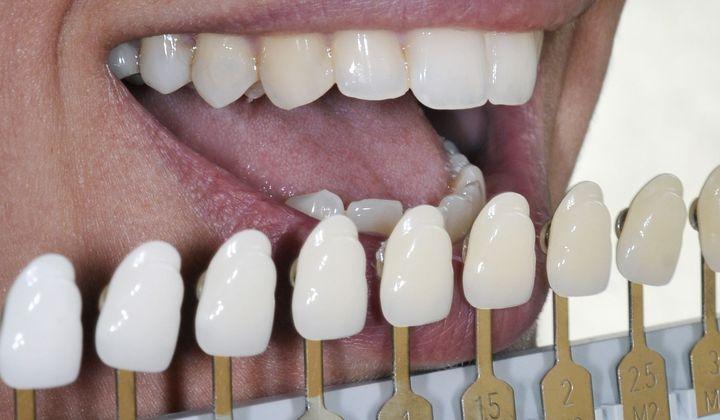 Shade-matching teeth