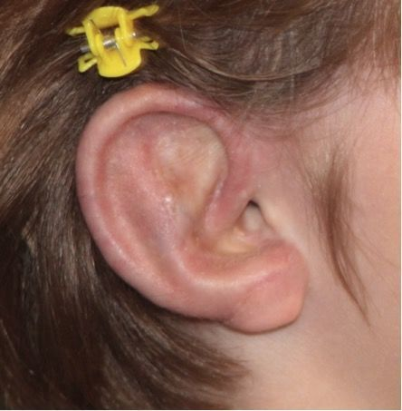 girl with ear trauma