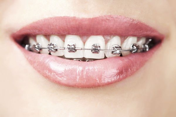 Close up of traditional orthodontics and woman's smile