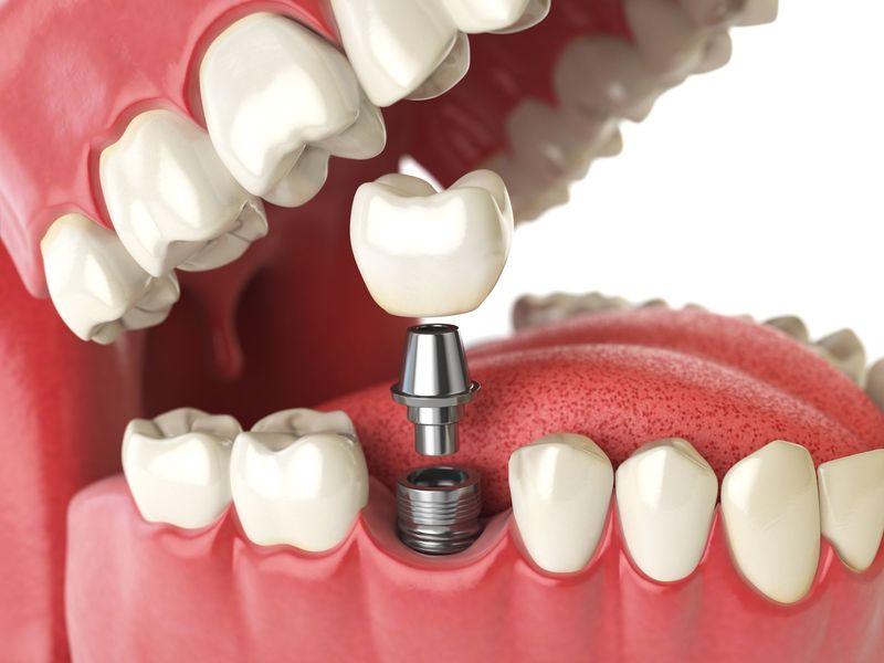 Dental Implant-Supported Crown